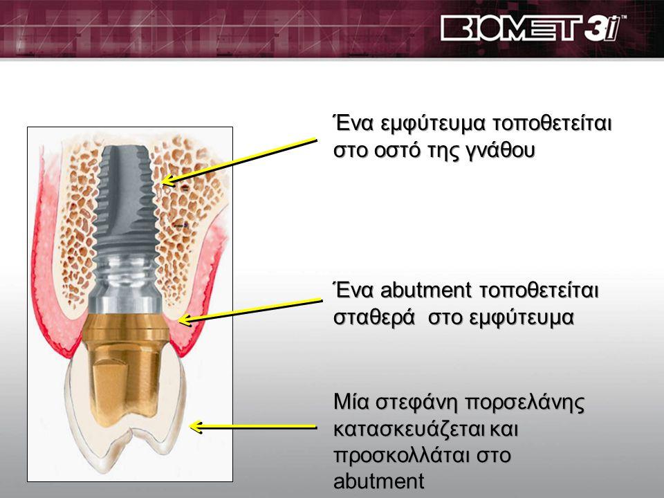 Ένα εμφύτευμα τοποθετείται στο οστό της γνάθου