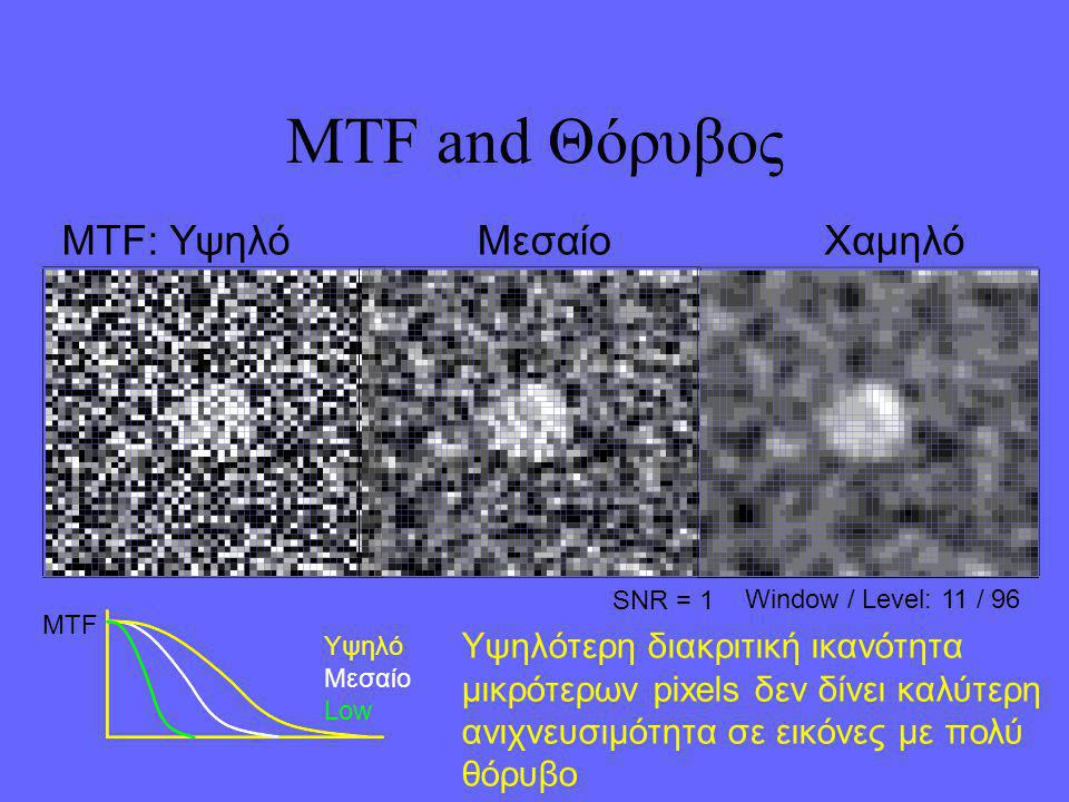 MTF and Θόρυβος MTF: Υψηλό Μεσαίο Χαμηλό