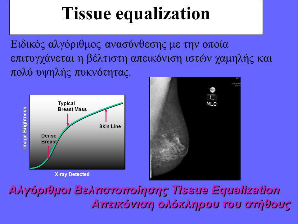 Tissue equalization Ειδικός αλγόριθμος ανασύνθεσης με την οποία επιτυγχάνεται η βέλτιστη απεικόνιση ιστών χαμηλής και πολύ υψηλής πυκνότητας.