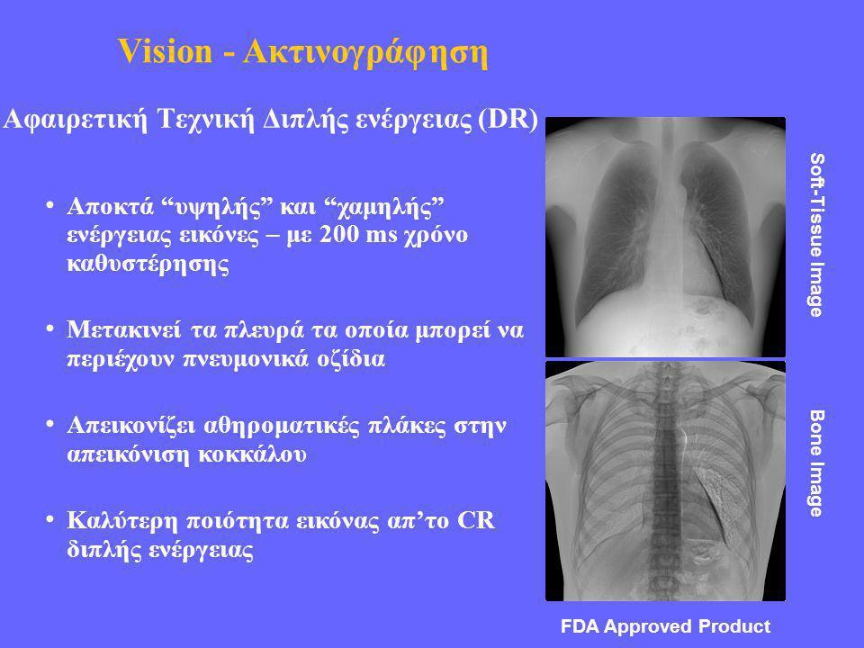 Αφαιρετική Τεχνική Διπλής ενέργειας (DR)