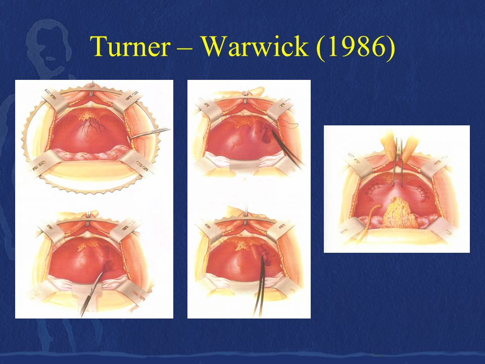 Turner – Warwick (1986)