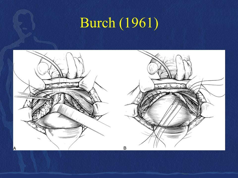 Burch (1961)