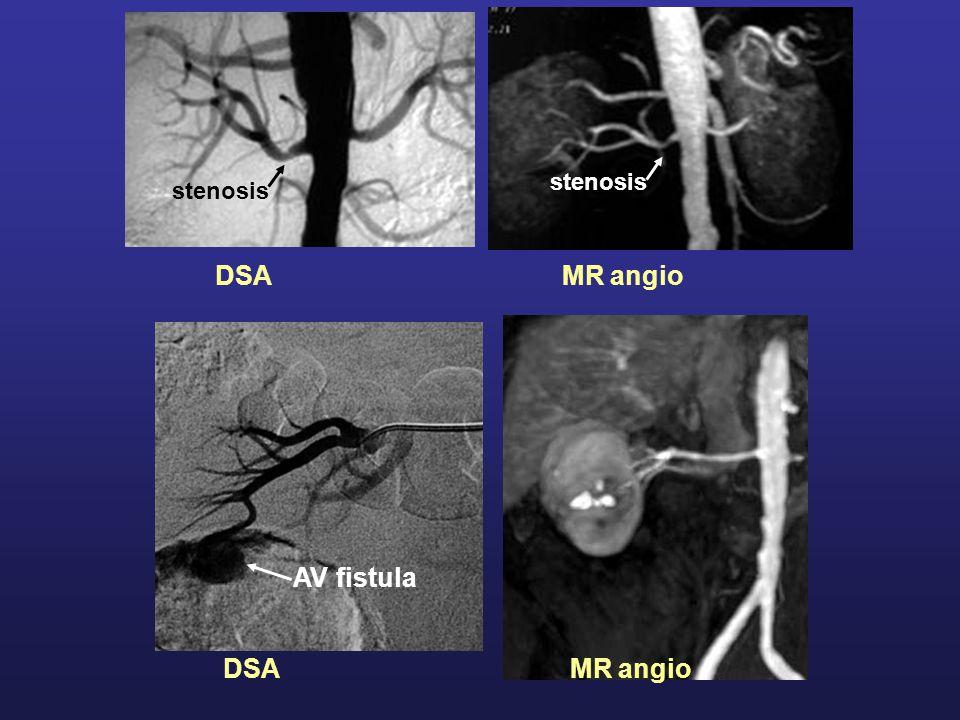 stenosis stenosis DSA MR angio AV fistula DSA MR angio