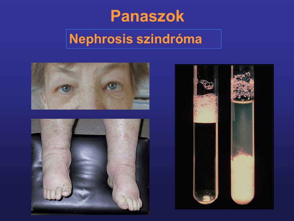 Panaszok Nephrosis szindróma