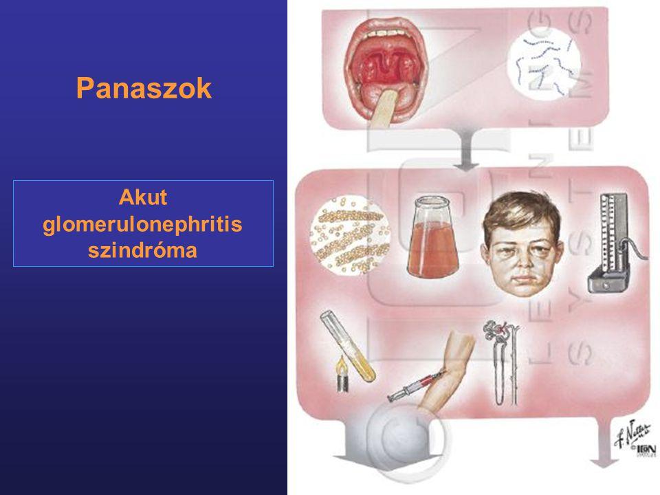 Akut glomerulonephritis szindróma