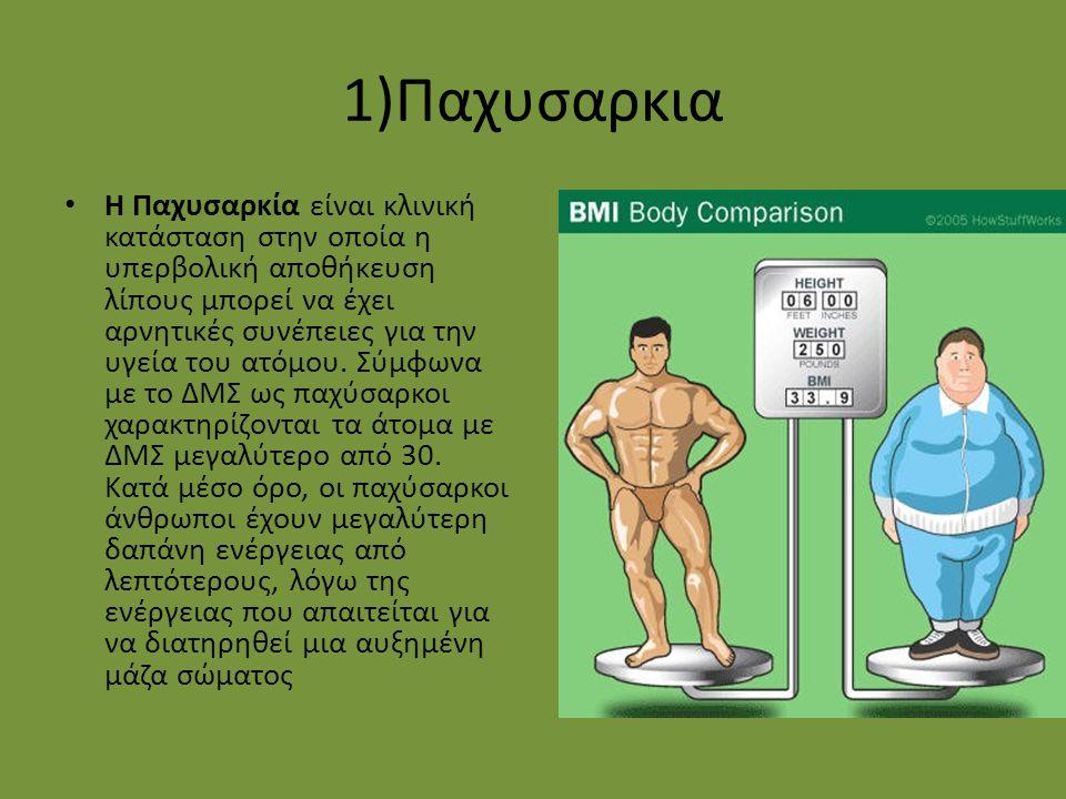1)Παχυσαρκια