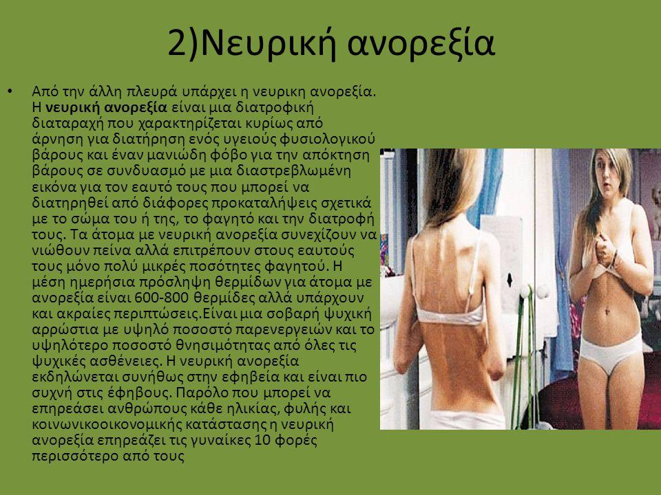 2)Νευρική ανορεξία
