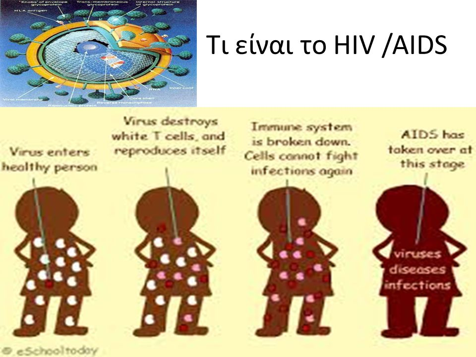 Τι είναι το HIV /AIDS