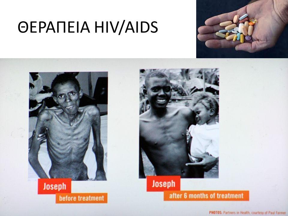ΘΕΡΑΠΕΙΑ HIV/AIDS