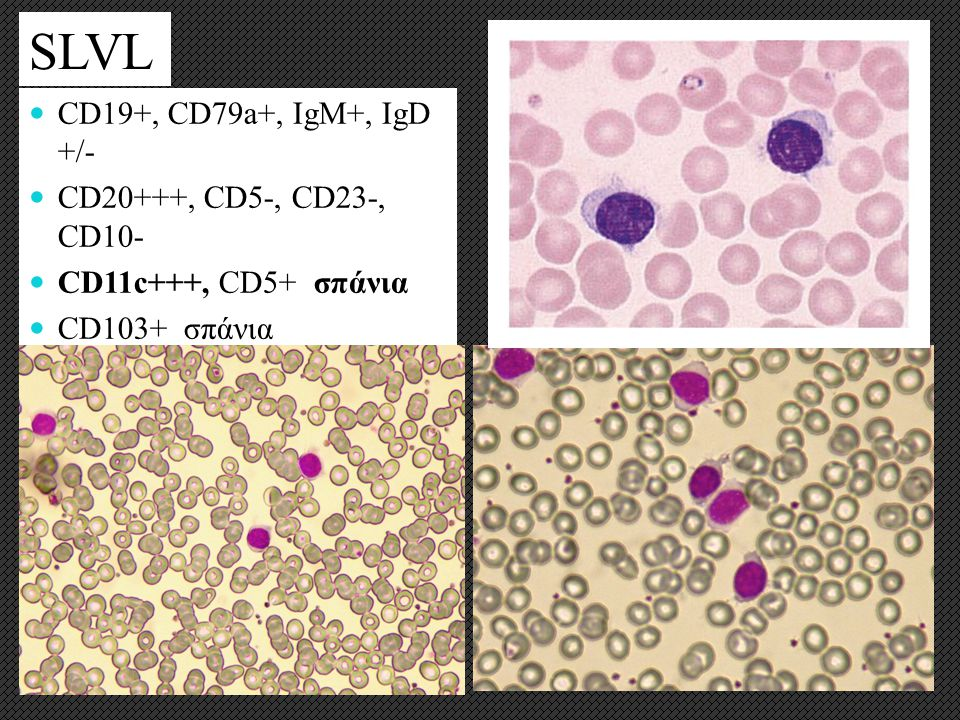 SLVL CD19+, CD79a+, IgM+, IgD +/- CD20+++, CD5-, CD23-, CD10-