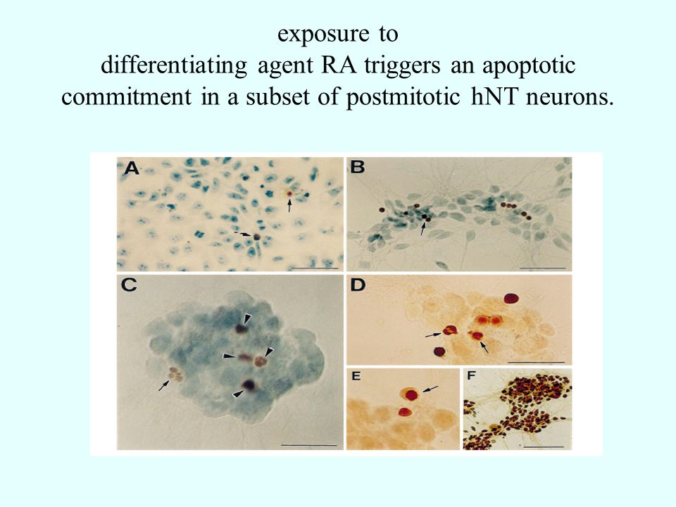 exposure to differentiating agent RA triggers an apoptotic commitment in a subset of postmitotic hNT neurons.