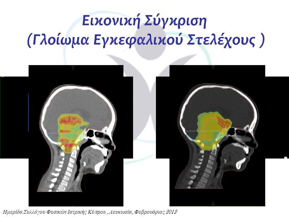 Εικονική Σύγκριση (Γλοίωμα Εγκεφαλικού Στελέχους )