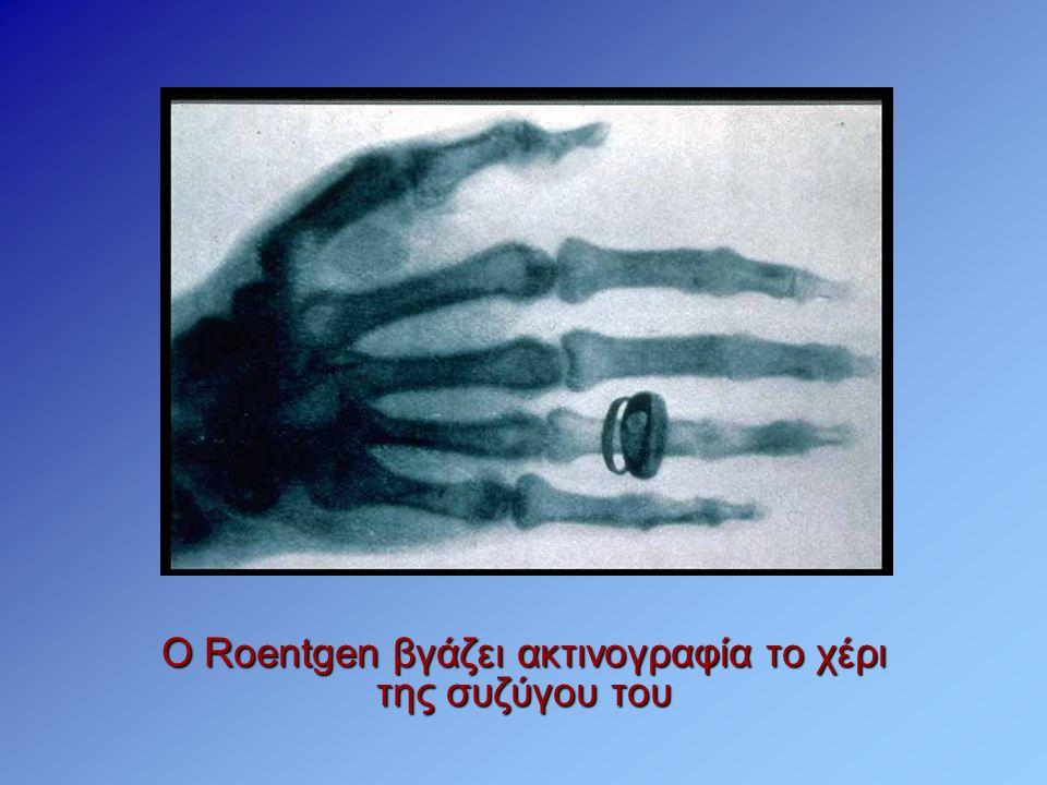 O Roentgen βγάζει ακτινογραφία το χέρι της συζύγου του