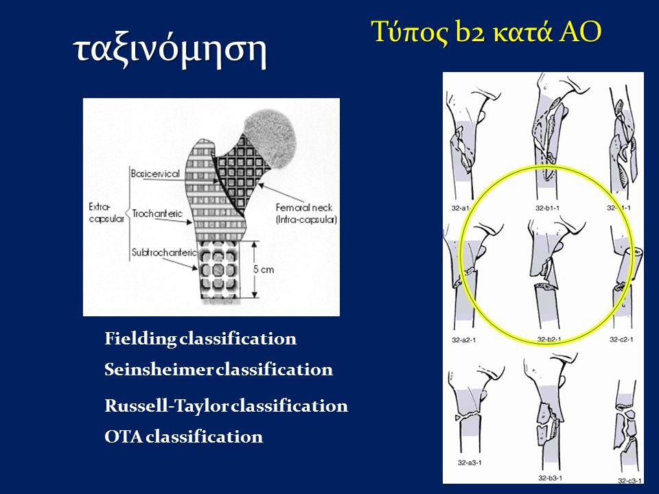 ταξινόμηση Τύπος b2 κατά ΑΟ Fielding classification