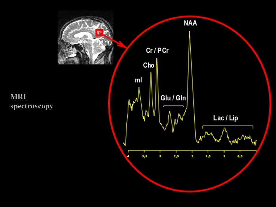 MRI spectroscopy