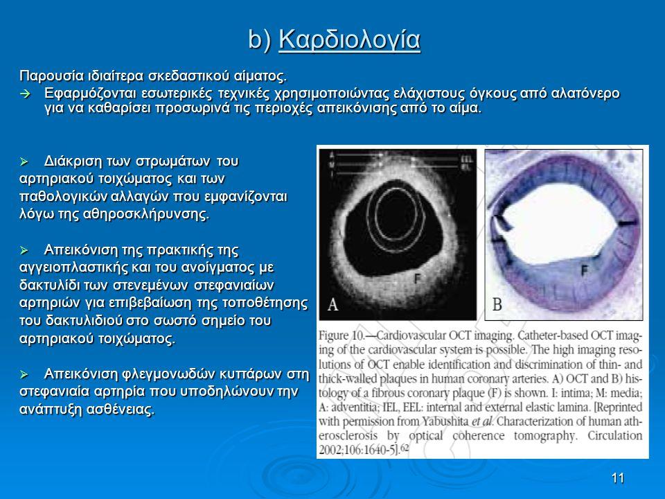 b) Καρδιολογία Παρουσία ιδιαίτερα σκεδαστικού αίματος.