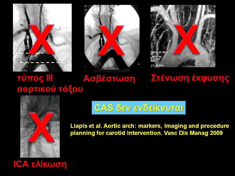 X X X X τύπος III αορτικού τόξου Ασβέστωση Στένωση έκφυσης