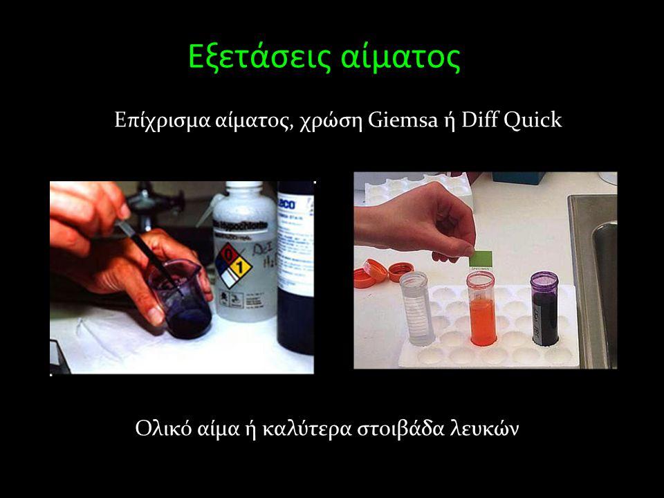 Εξετάσεις αίματος Επίχρισμα αίματος, χρώση Giemsa ή Diff Quick