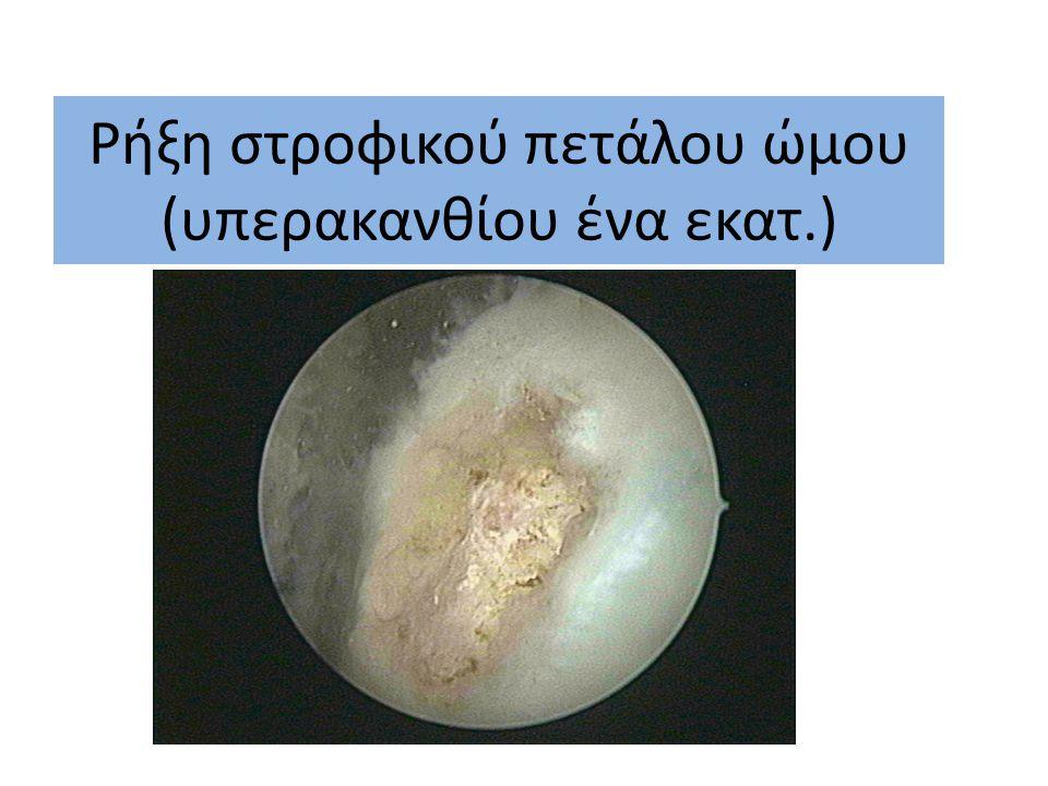 Ρήξη στροφικού πετάλου ώμου (υπερακανθίου ένα εκατ.)