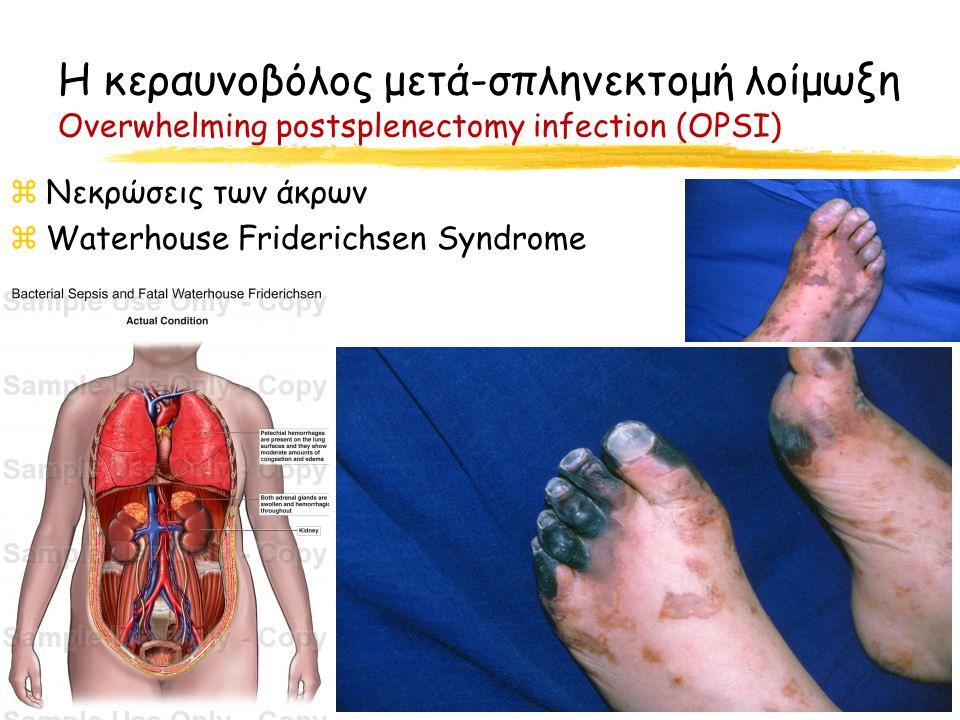 Η κεραυνοβόλος μετά-σπληνεκτομή λοίμωξη Overwhelming postsplenectomy infection (OPSI)