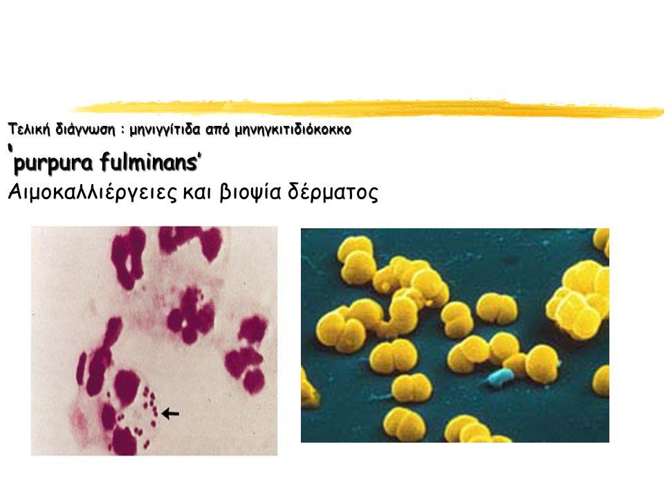 Τελική διάγνωση : μηνιγγίτιδα από μηνηγκιτιδιόκοκκο 'purpura fulminans' Αιμοκαλλιέργειες και βιοψία δέρματος