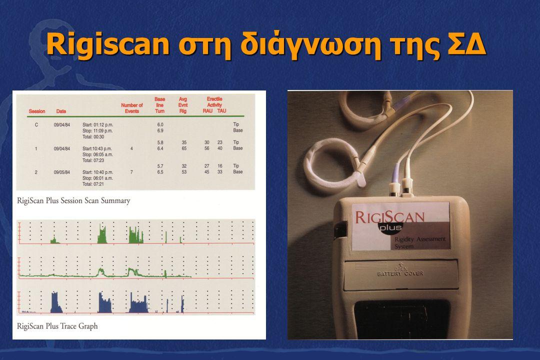 Rigiscan στη διάγνωση της ΣΔ