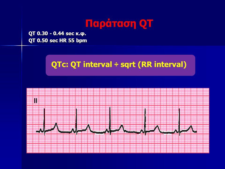 QTc: QT interval ÷ sqrt (RR interval)