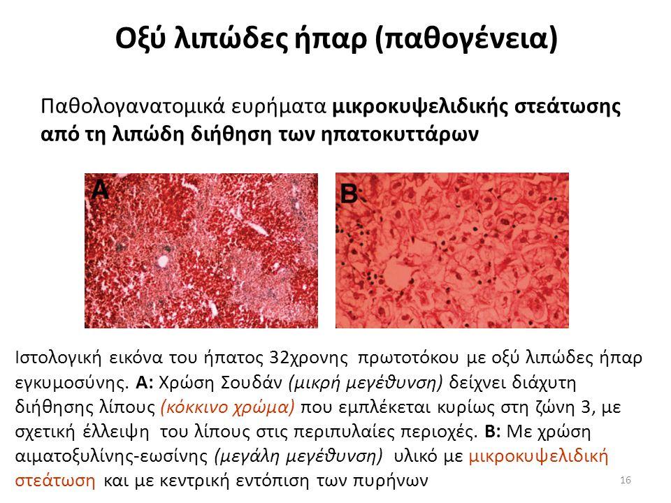Οξύ λιπώδες ήπαρ (παθογένεια)