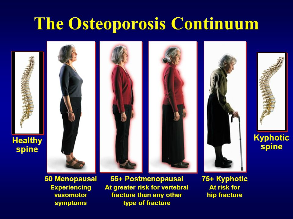 The Osteoporosis Continuum
