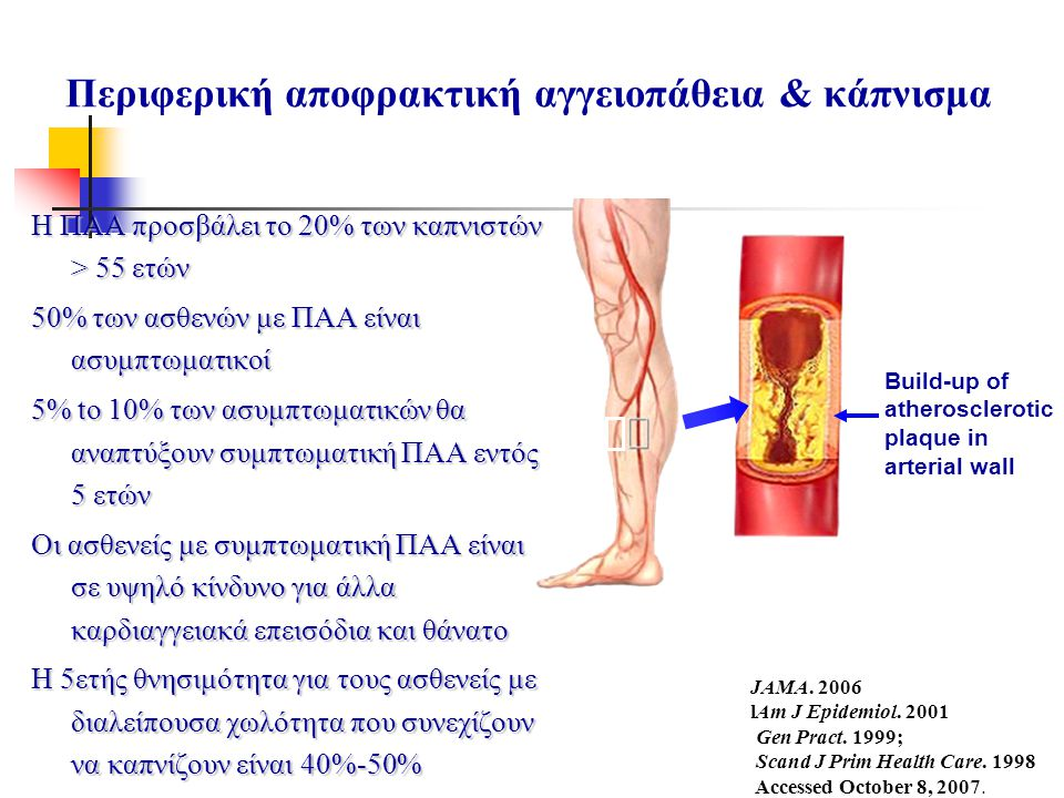Περιφερική αποφρακτική αγγειοπάθεια & κάπνισμα
