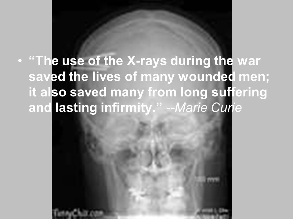 The use of the X-rays during the war saved the lives of many wounded men; it also saved many from long suffering and lasting infirmity. --Marie Curie
