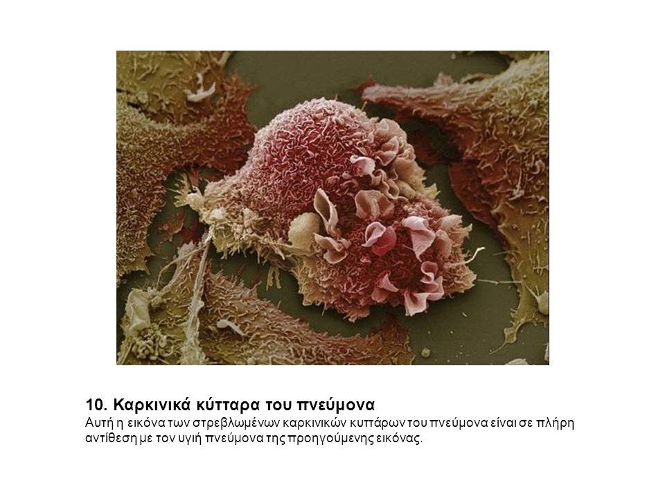 10. Καρκινικά κύτταρα του πνεύμονα