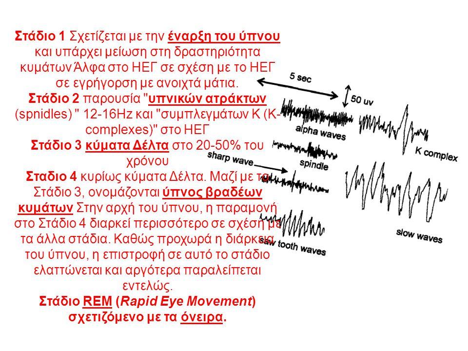 Στάδιο 3 κύματα Δέλτα στο 20-50% του χρόνου