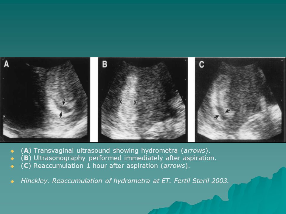 (A) Transvaginal ultrasound showing hydrometra (arrows).