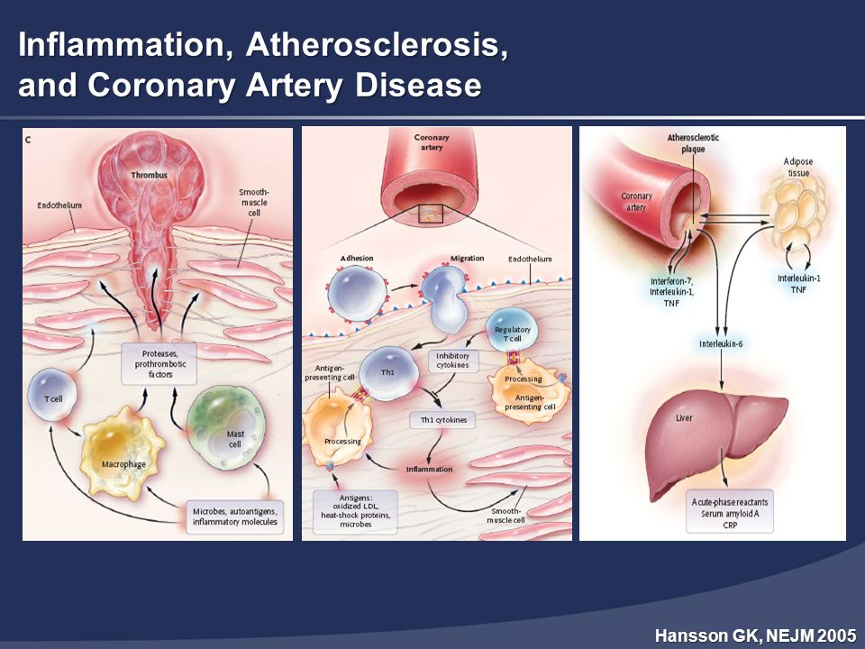 Inflammation, Atherosclerosis, and Coronary Artery Disease