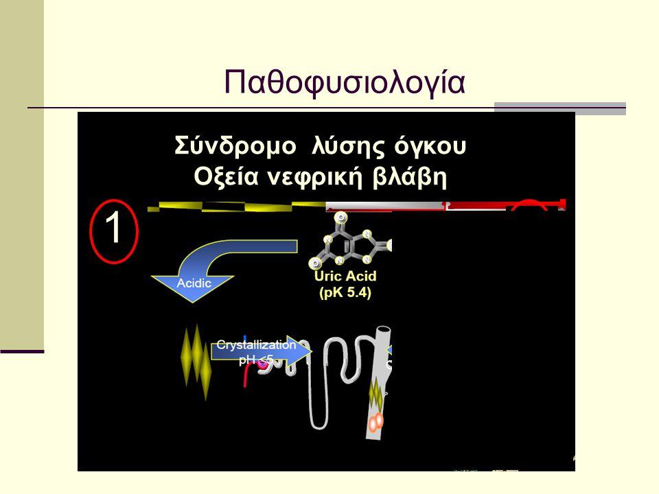 Παθοφυσιολογία Σύνδρομο λύσης όγκου Οξεία νεφρική βλάβη 1 2