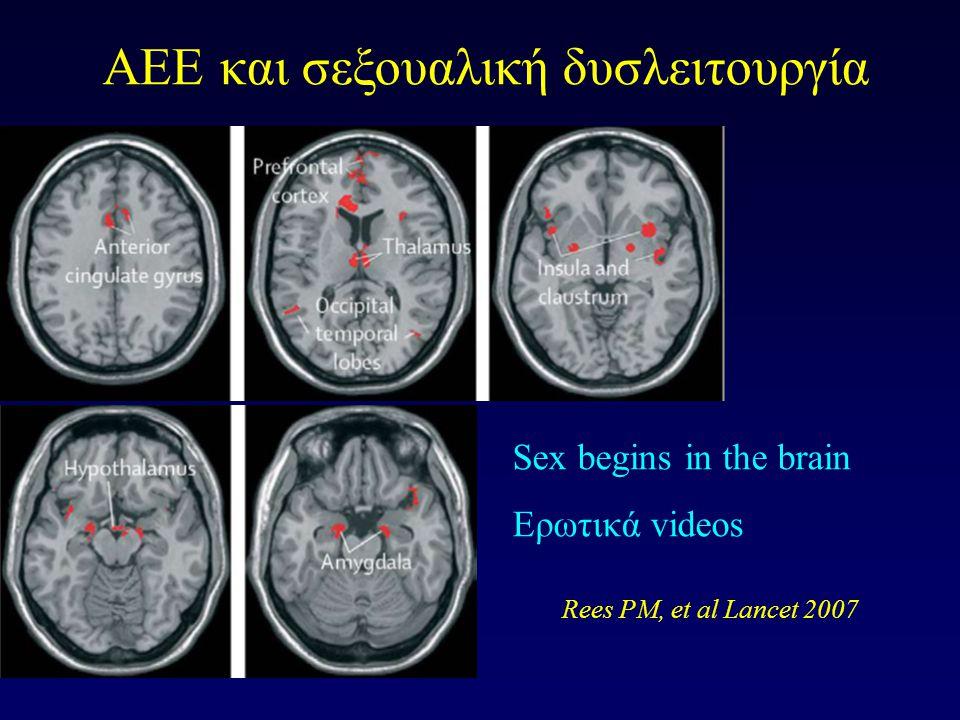 AEE και σεξουαλική δυσλειτουργία