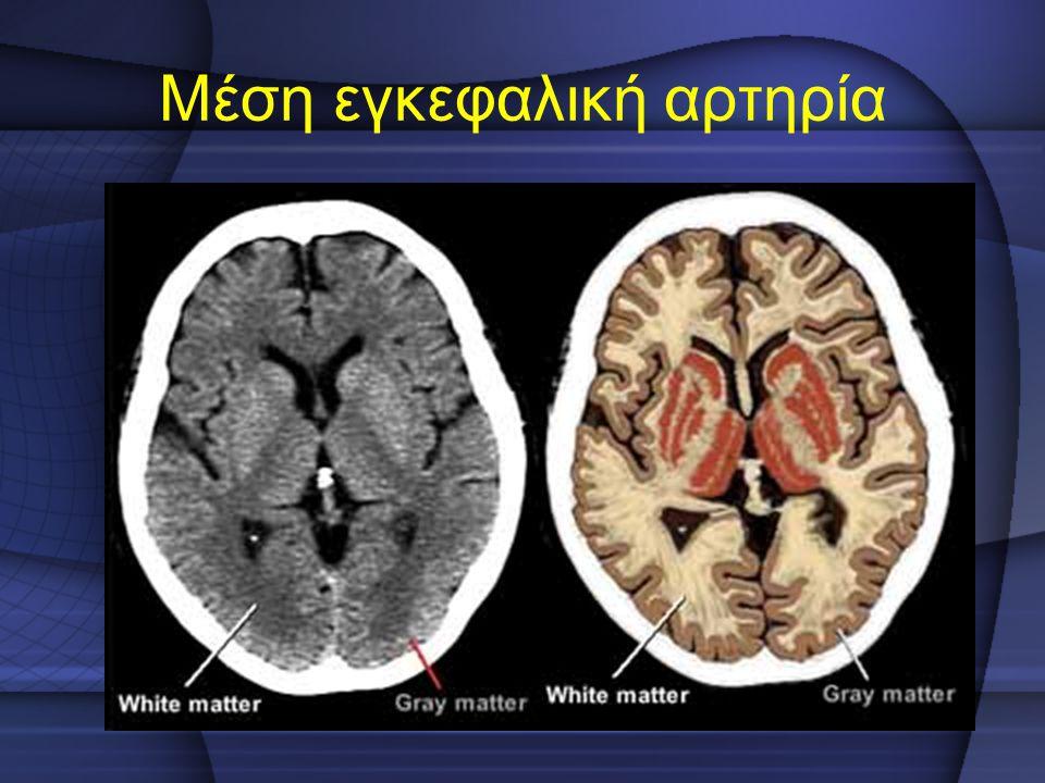 Μέση εγκεφαλική αρτηρία