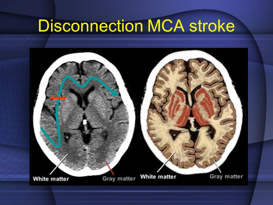 Disconnection MCA stroke
