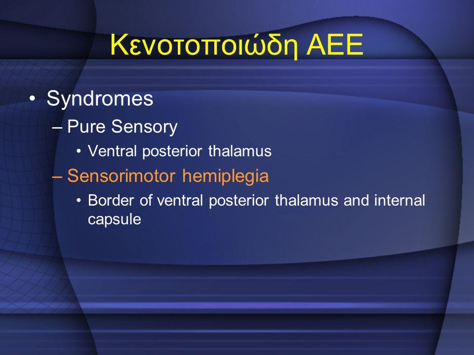 Κενοτοποιώδη ΑΕΕ Syndromes Pure Sensory Sensorimotor hemiplegia