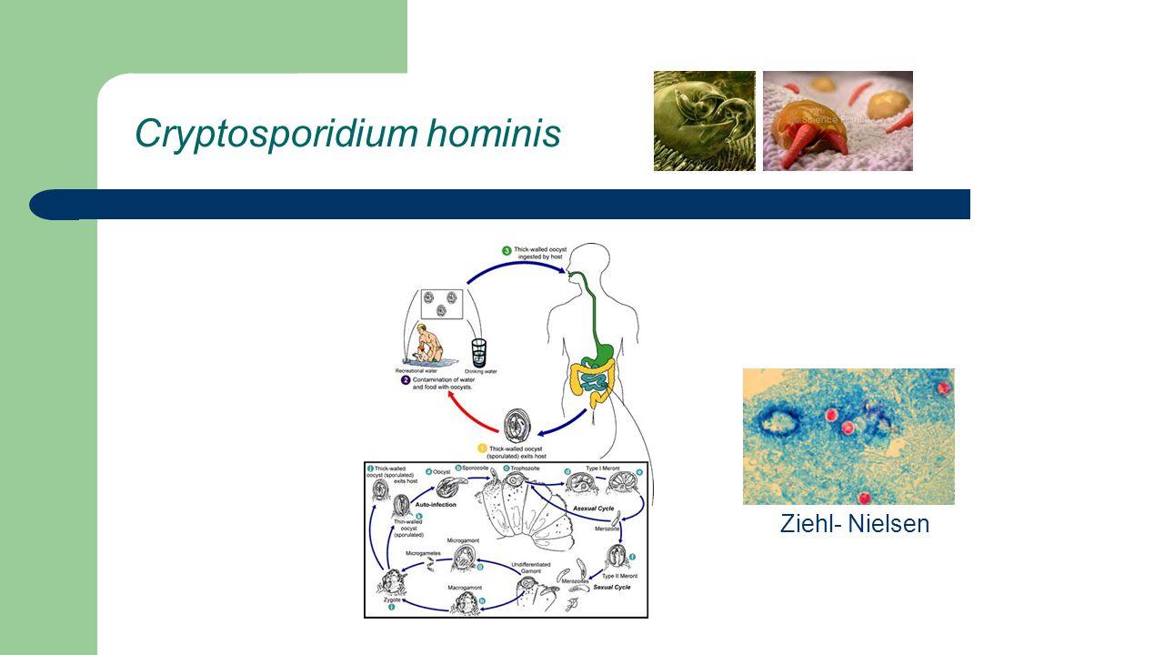 Cryptosporidium hominis