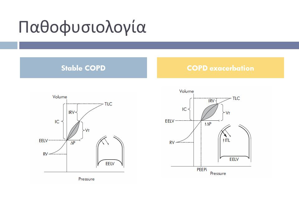 Παθοφυσιολογία Stable COPD COPD exacerbation