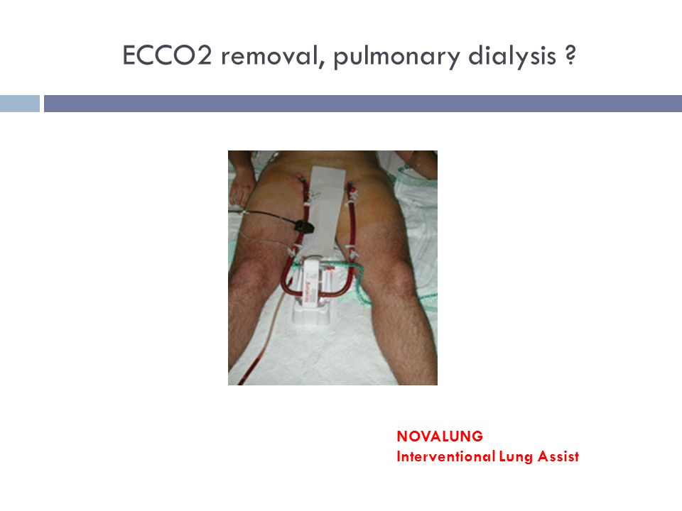ECCO2 removal, pulmonary dialysis