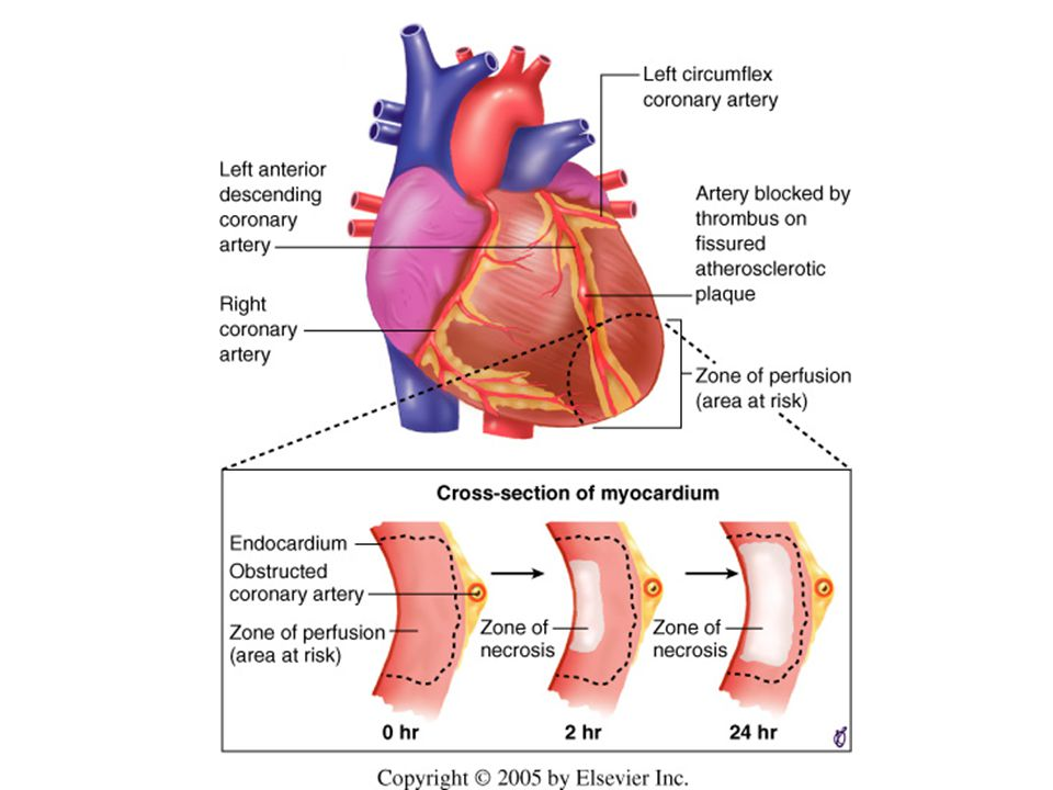 Schematic representation of the progression of myocardial necrosis after coronary artery occlusion.