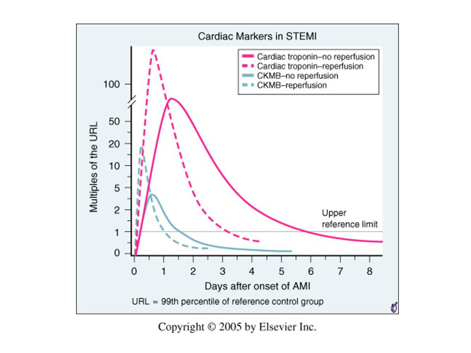 The kinetics of release of creatine kinase MB (CKMB) and cardiac troponin in patients who do not undergo reperfusion are shown in the solid green and red curves as multiples of the upper reference limit (URL).