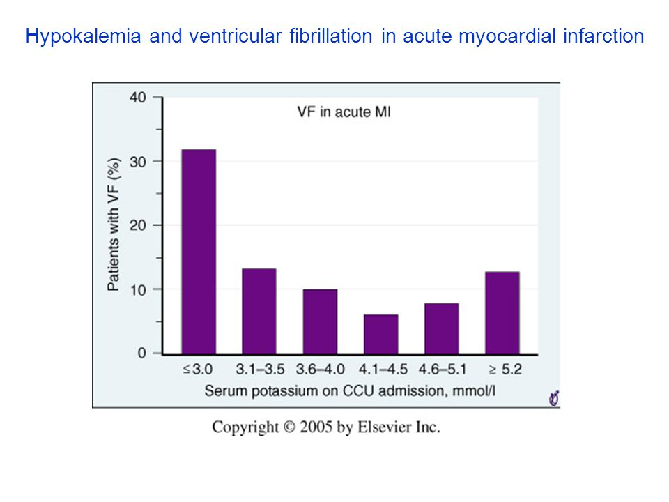 Hypokalemia and ventricular fibrillation in acute myocardial infarction