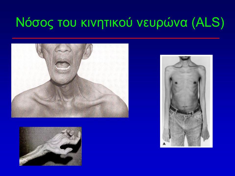 Νόσος του κινητικού νευρώνα (ALS)