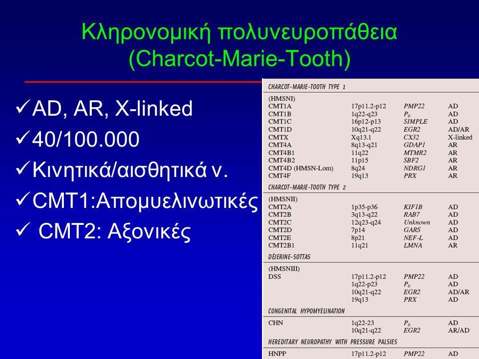 Κληρονομική πολυνευροπάθεια (Charcot-Marie-Tooth)