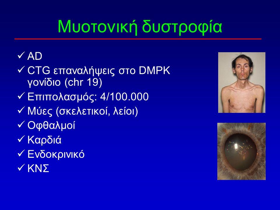 Μυοτονική δυστροφία AD CTG επαναλήψεις στο DMPK γονίδιο (chr 19)