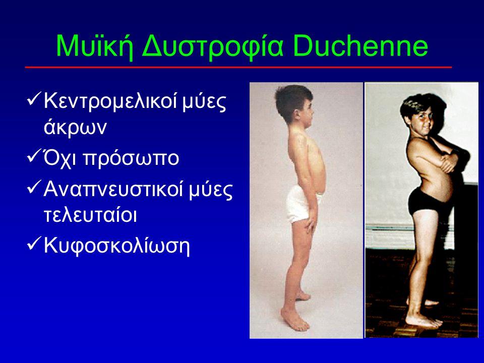 Μυϊκή Δυστροφία Duchenne